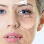4 cách chăm sóc da khô mùa hè giúp da khoẻ đẹp mịn màng